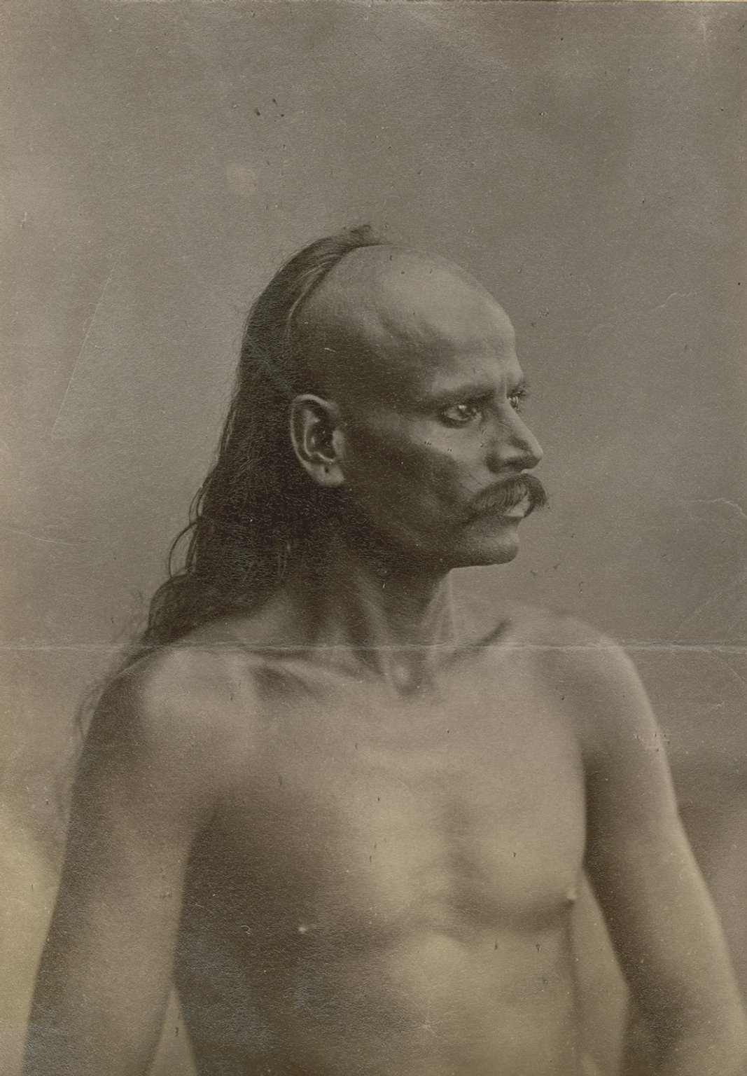 Indian man whose front scalp is shaved, with long hair in back.
